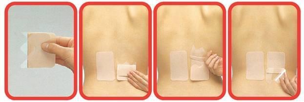 salonpas hisamitsu patch use